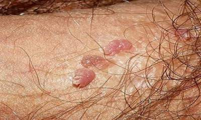 hpv and herpes symptoms simptome in cancerul de colon