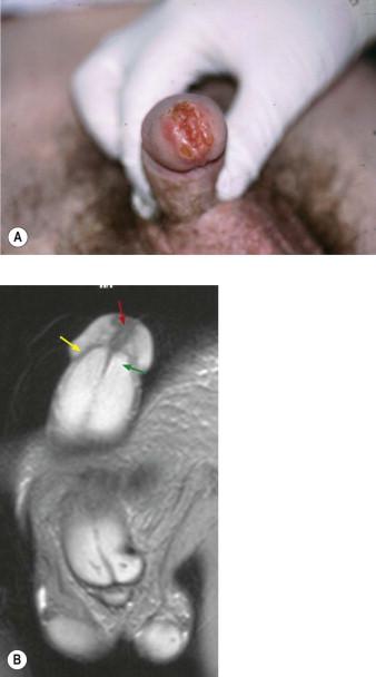 cancer on tip of urethra)