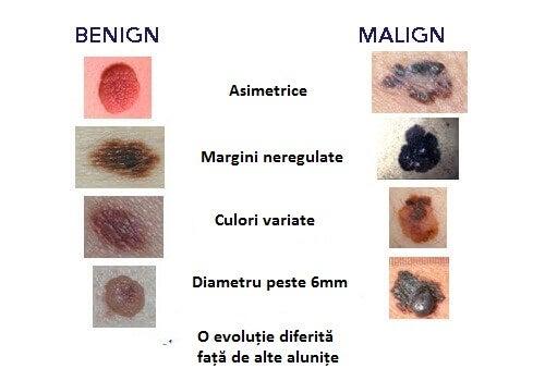 papilloma virus how to pronounce giardia debutul simptomelor