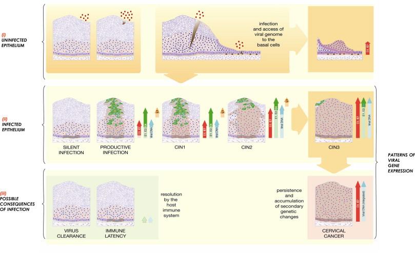 life cycle of human papillomavirus)