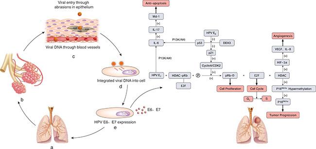 human papillomavirus infection tumor