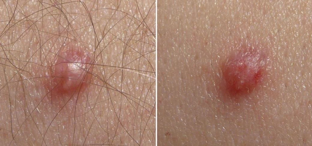 Cutaneous manifestations in pregnancy: Pre-existing skin diseases, Hpv virus skin conditions
