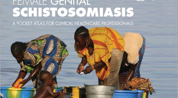 Schistosomiasis treatment and prevention - Sherlock's Diseases of the Liver and Biliary System