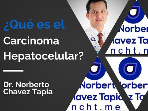 cancerul hepatocelular)