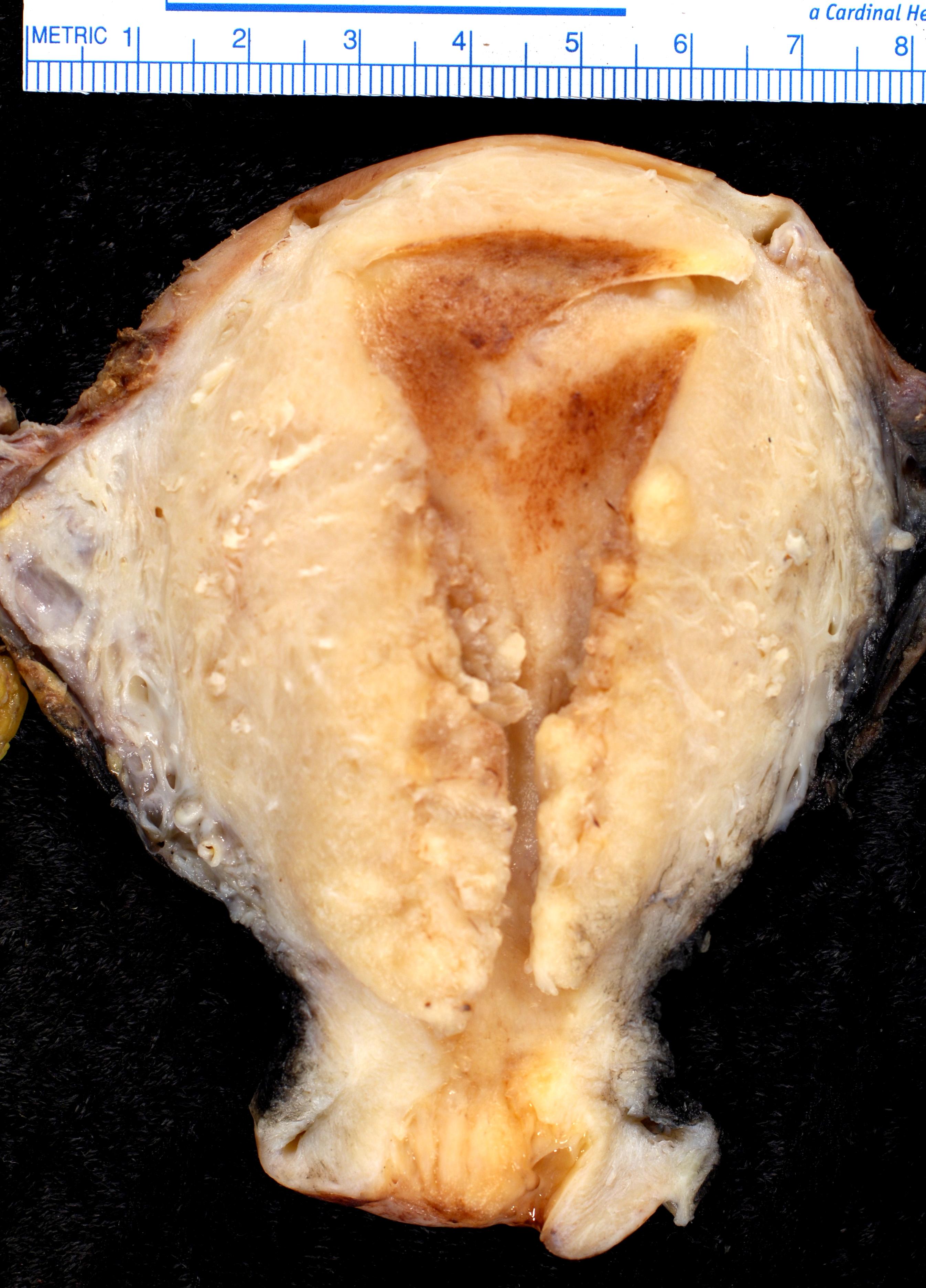 cancer endometrial mas frecuente)