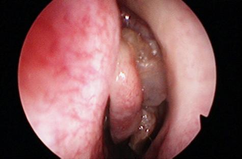 papilloma sul naso bacterii genitale