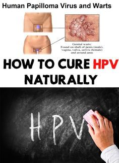 cure for human papilloma virus
