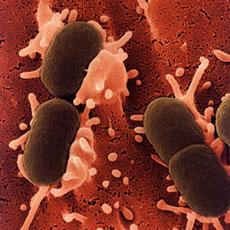 Cauzele apariției bacteriei E. coli și cum o poți evita