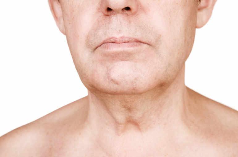 papillomavirus et cancer de la gorge