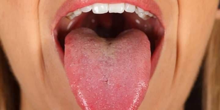 virus del papiloma en garganta