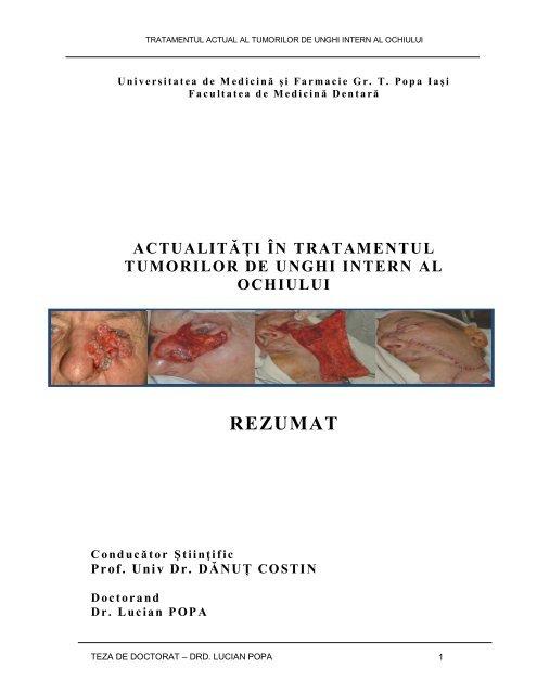 neoplasm malign al unui orb