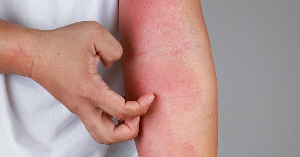 cancer colon sigmoid simptome hpv warts and penile cancer