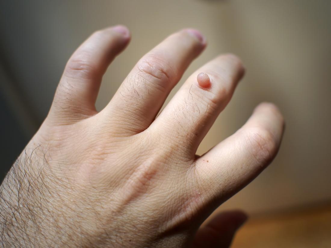 wart treatment blood blister)
