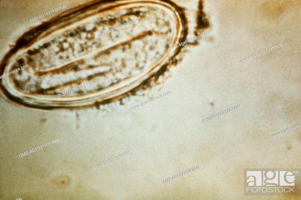 Enterobius vermicularis pathology