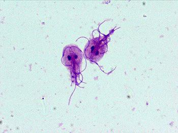 toxina giardia pancreatic cancer x ray