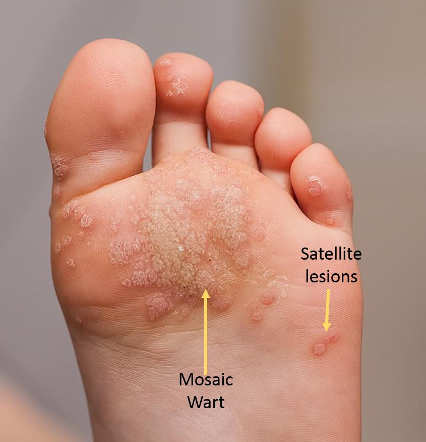 wart on his foot gambar penyakit schistosomiasis