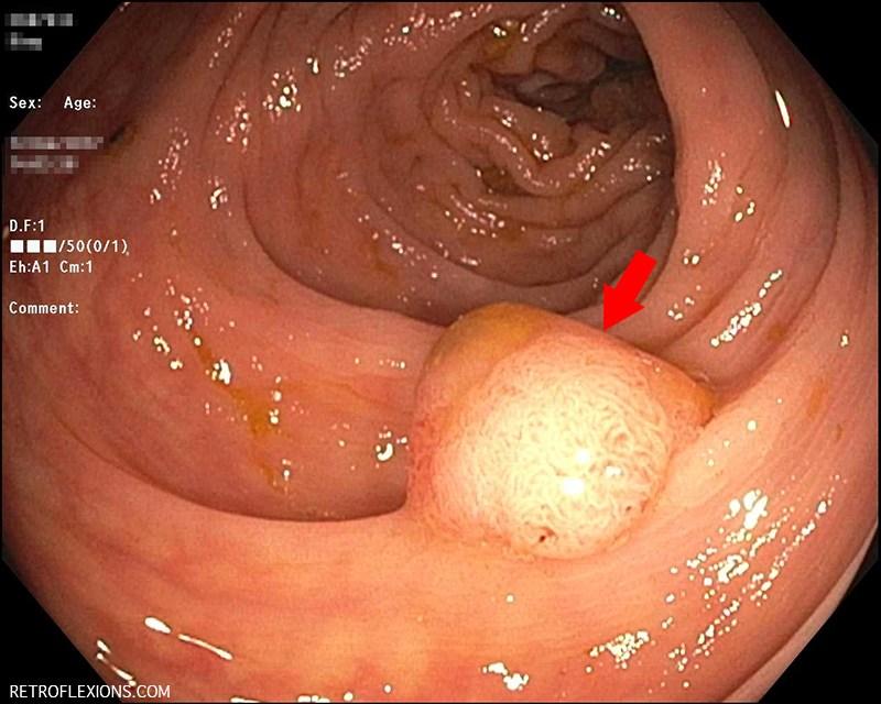 Colon cancer benign polyps.