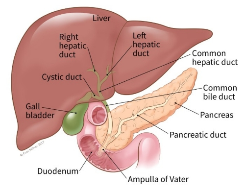 cancer pancreatic duct