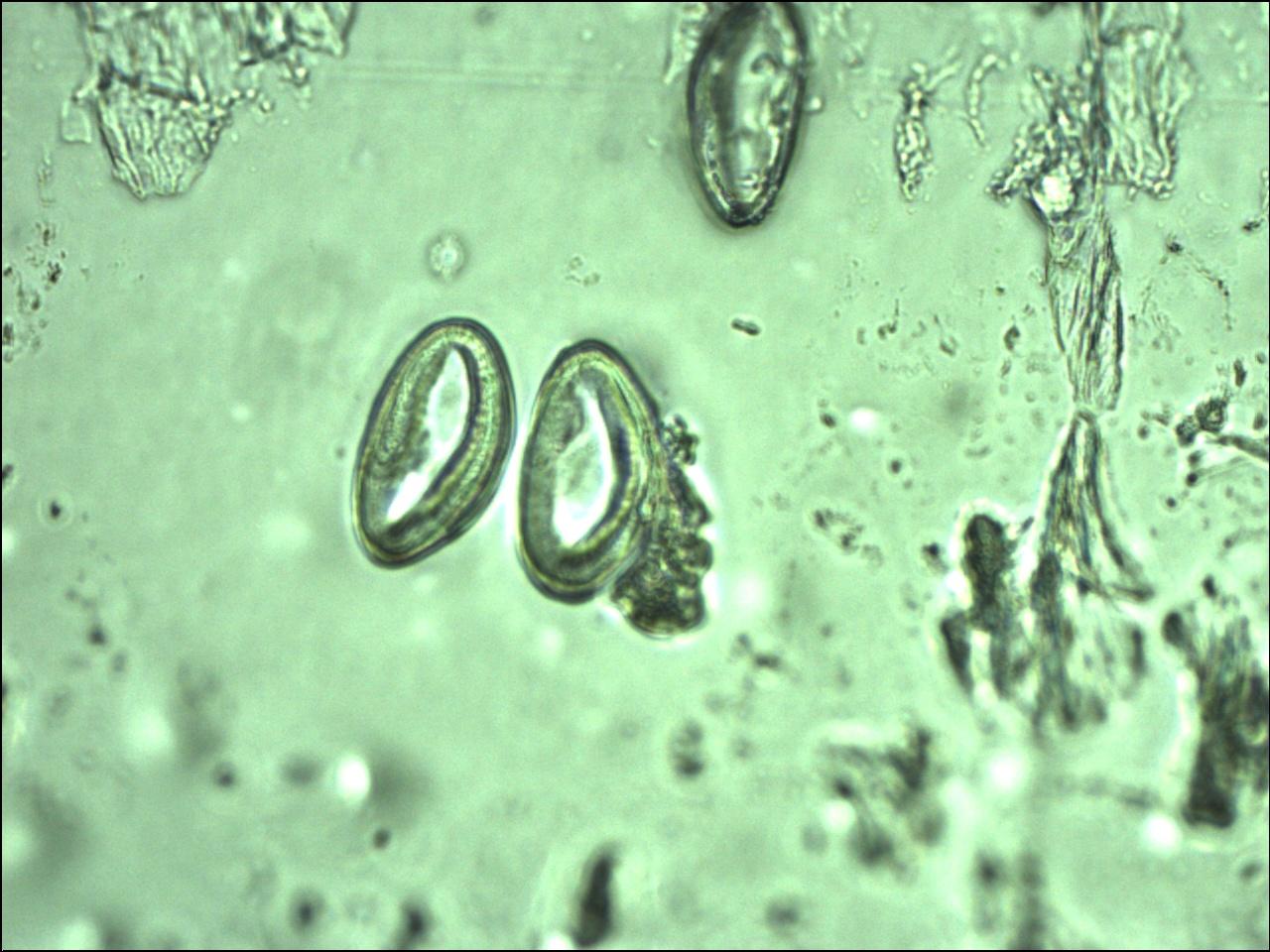 "Enterobius vermicularis na urina. 5 thoughts on ""Paraziti cu urina"""
