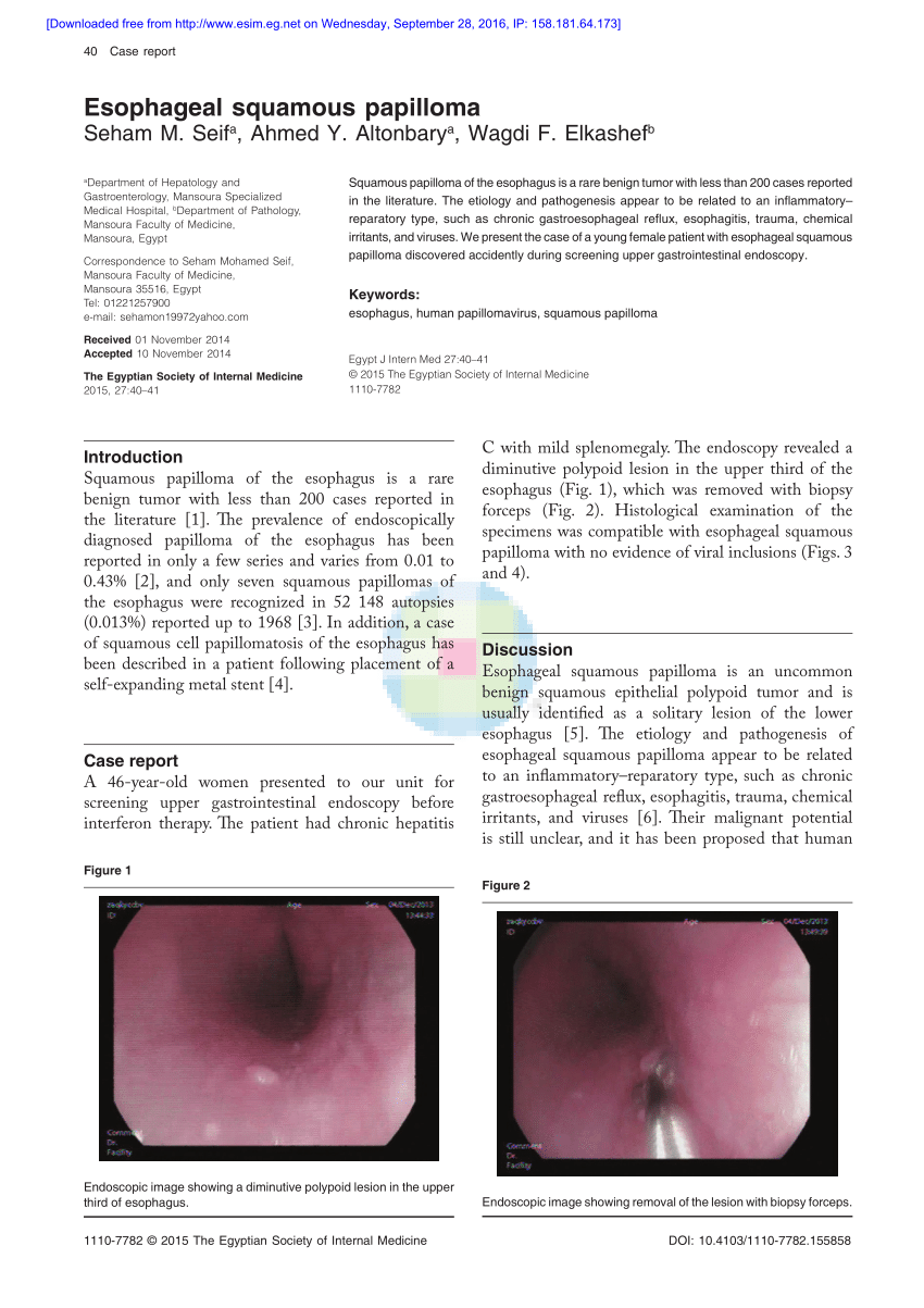 esophageal papilloma hpv)