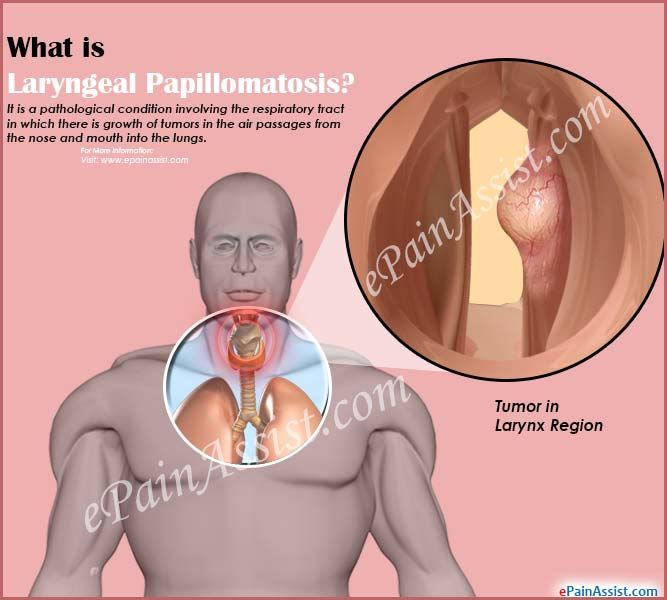 respiratory papillomatosis in infants symptoms