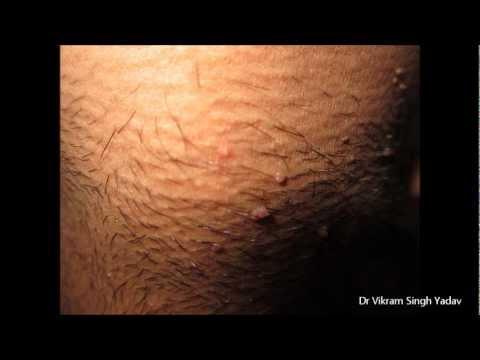 să scapi de negi? Naturale de tratament pentru warts, Wart treatment thuja