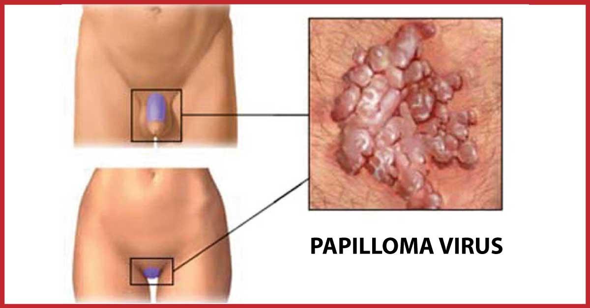 papillomavirus verruche genitali)