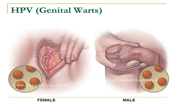 Does hpv genital warts cause cancer