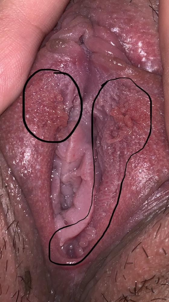 vestibular papillae removal