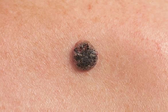 cancer de piele faza incipienta)