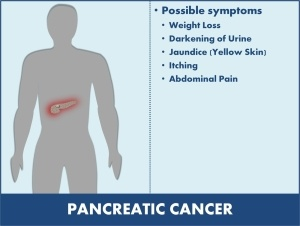 pancreatic cancer abdominal tenderness)