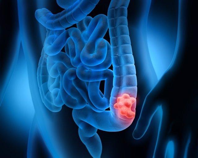 simptomele viermilor adulți tratați)