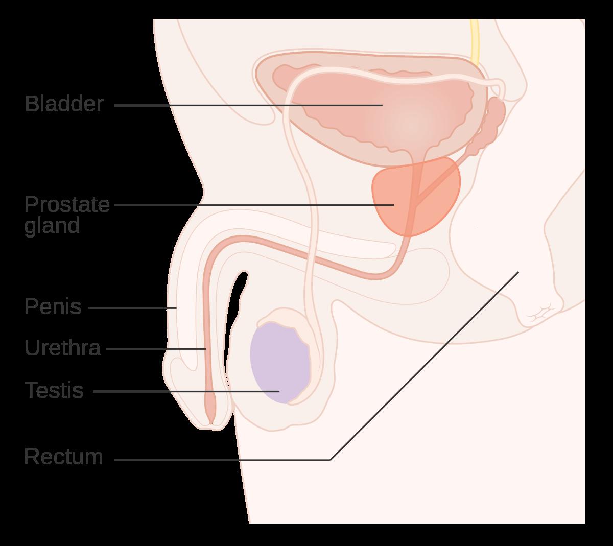 cancer de prostata hematuria)
