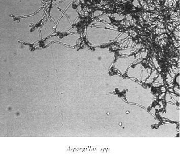 parazitoizi endoparaziți)