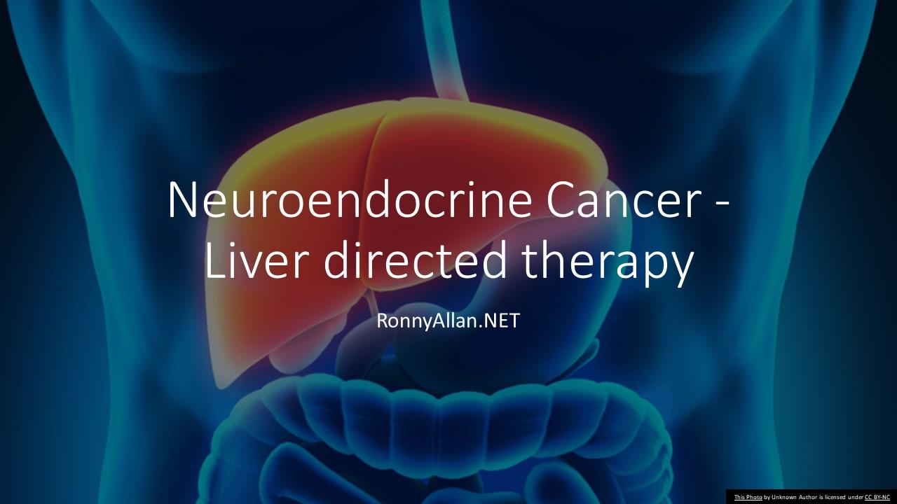 Neuroendocrine cancer liver mets prognosis,