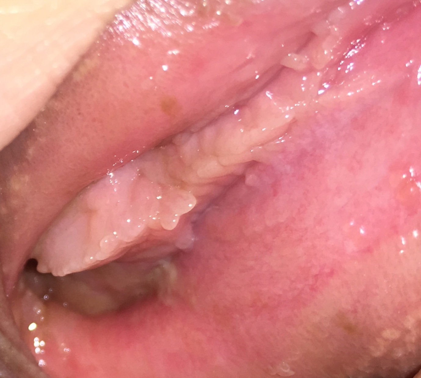 vestibular papillomatosis compared to genital warts