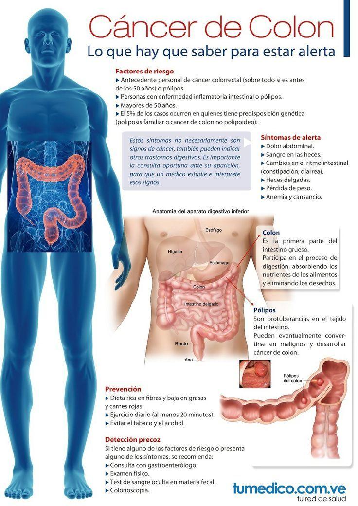 Cancer de colon hombres sintomas, Most viewed