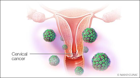 Human papillomavirus q