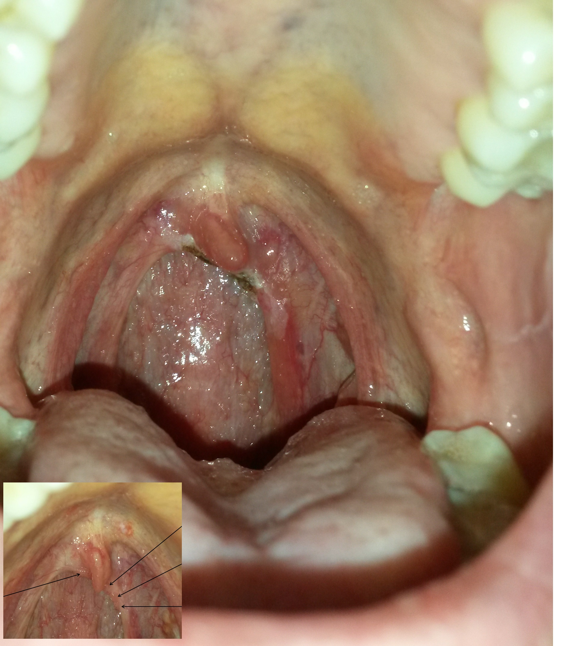 papillomavirus associated warts)