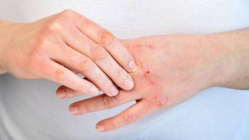 dermatite da contatto)