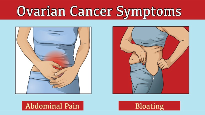 cancer abdominal pain bloating