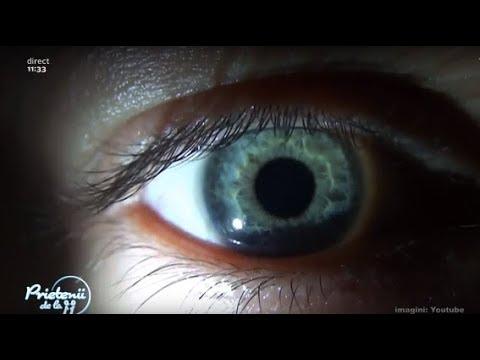 cum să scapi de paraziți în ochi