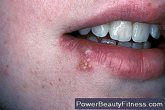 papilloma virus e mal di gola)