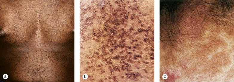 confluent and reticulated papillomatosis)