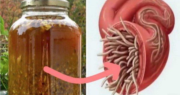 paraziți și viermi în tratamentul corpului uman)