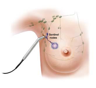 Nodulo papilloma al seno. Sinonimele și antonimele fibroadenoma în dicționarul de sinonime Italiană