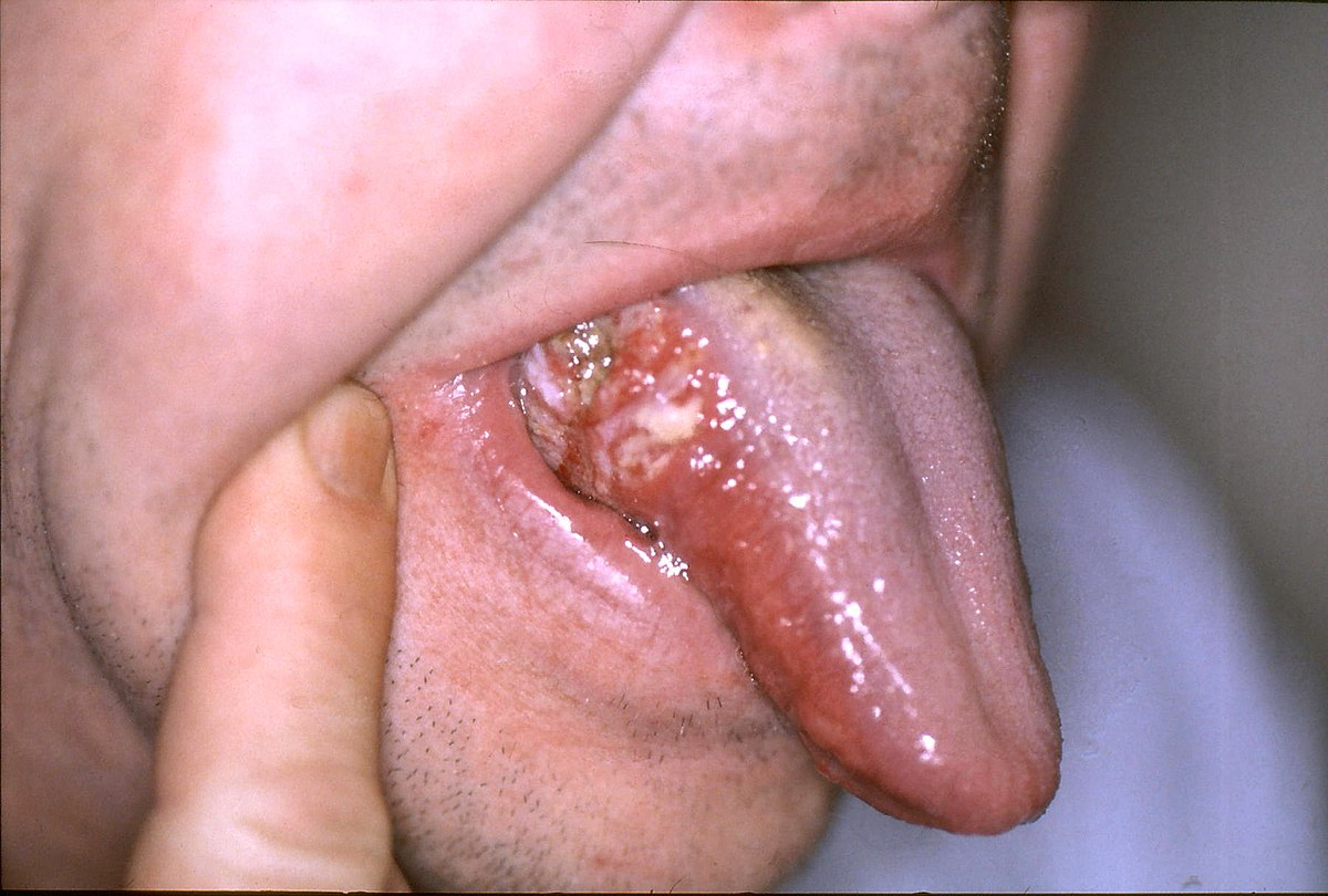 Hpv-associated oropharyngeal cancer symptoms, Mult mai mult decât documente.