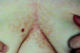 squamous papilloma about hpv screen nhs