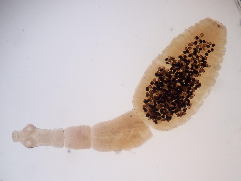 parazit v jatrech)
