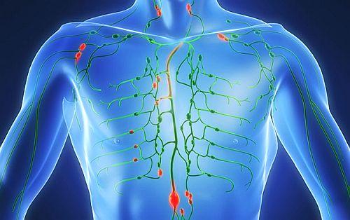 Cancerul limfatic, o boală mortală, greu de depistat. Cauze, simptome, tratament și prevenție